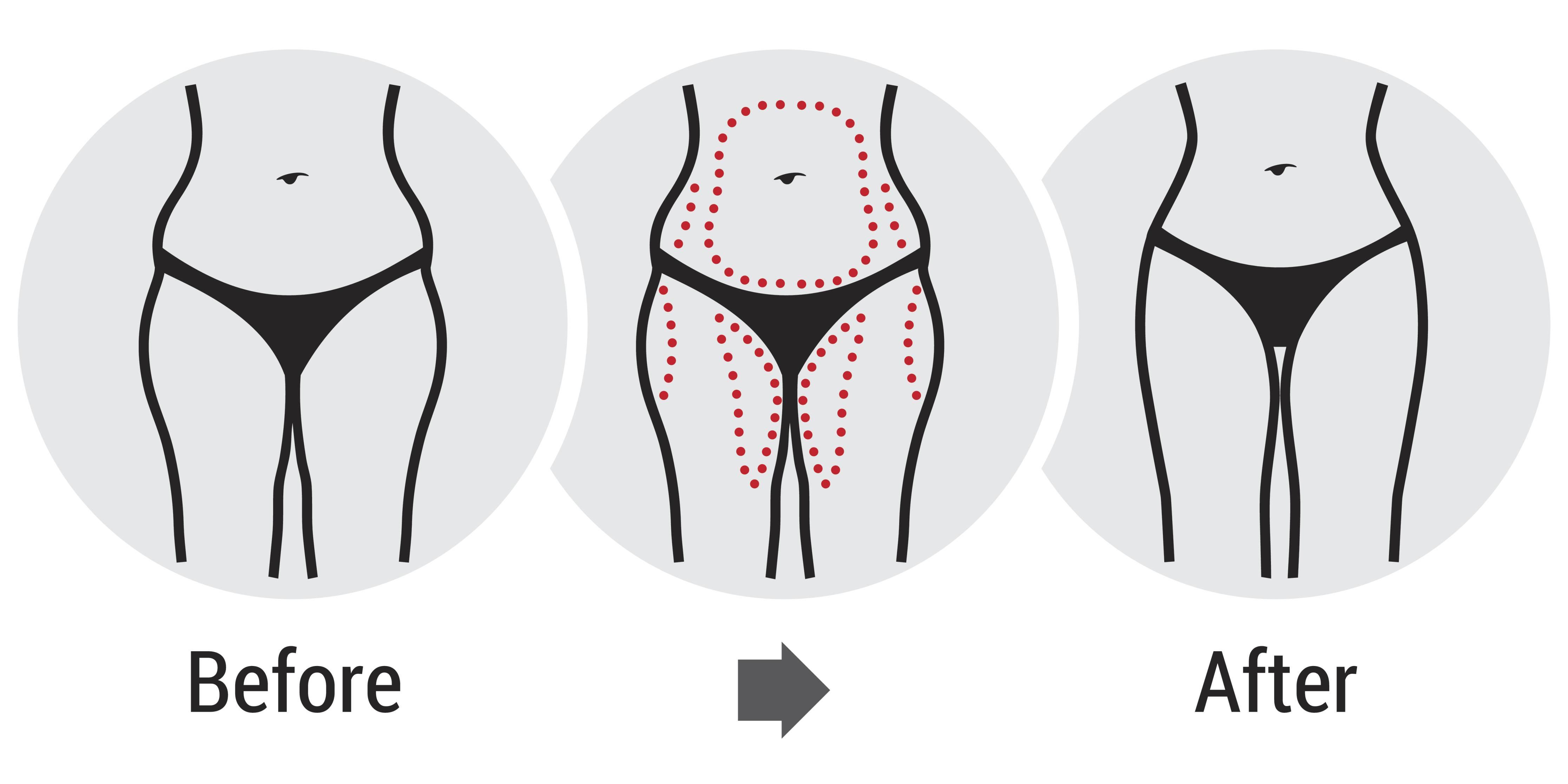 come perdere peso rimedio a casa