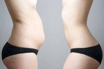 8 errori che ti impediscono di dimagrire