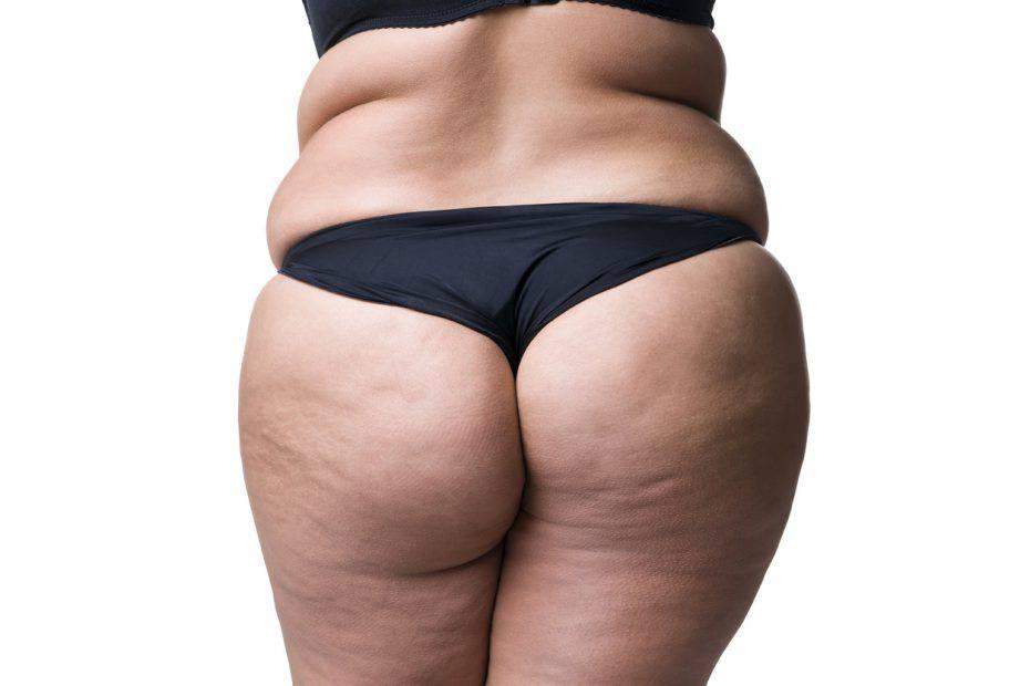 Dieta Anti-Cellulite: Perdi 5 Kg in 5 Giorni