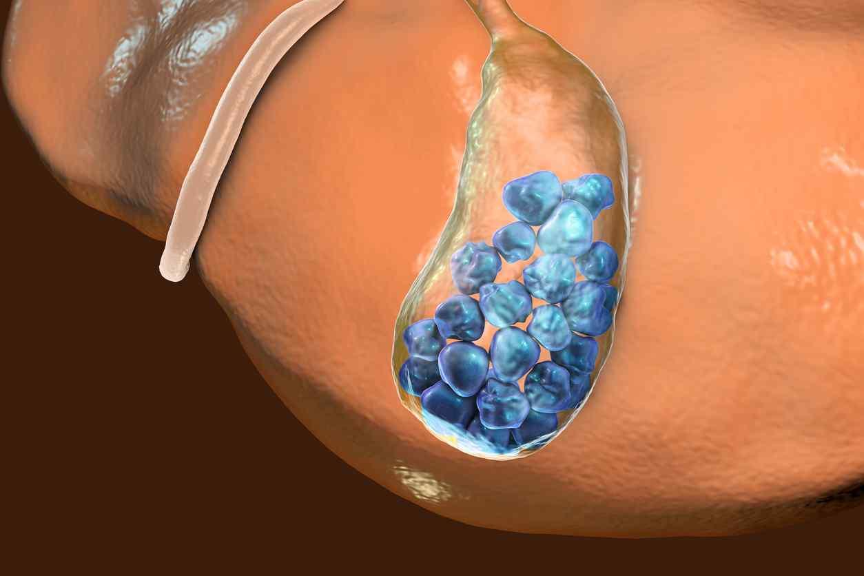 Calcoli biliari: cosa sono e come prevenirli attraverso l'alimentazione